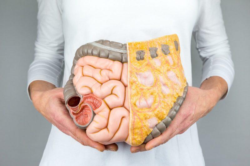 Sindromul colonului iritabil sau când stresul trece prin stomac